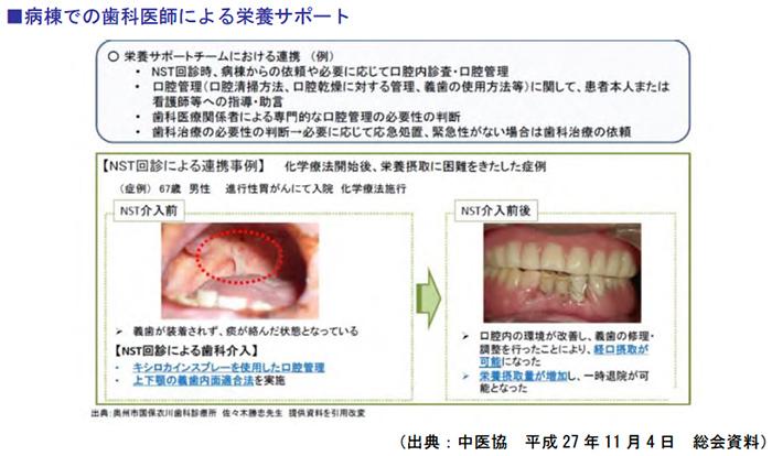 病棟での歯科医師による栄養サポート