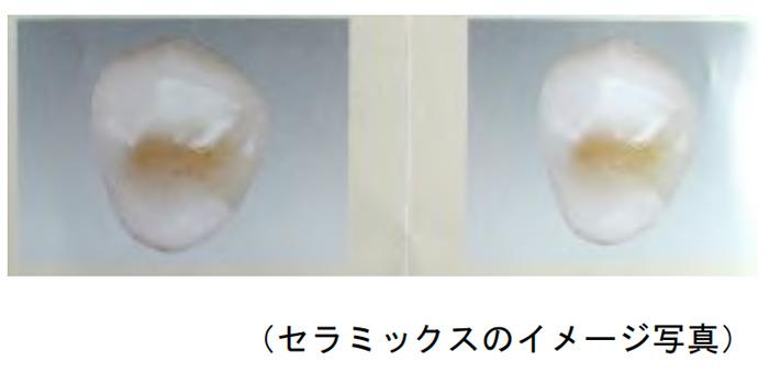 セラミックスのイメージ写真